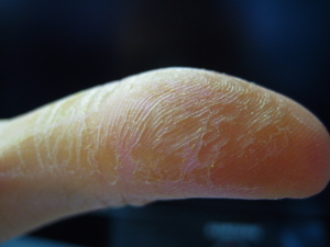contact_dermatitis_finger