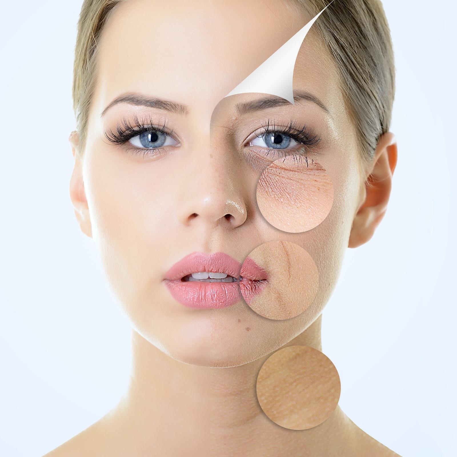Vitamins that help to stop wrinkles
