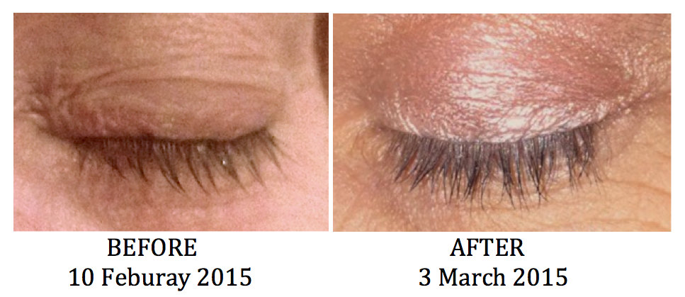 The Results Are In It Really Works Zen Dejour Eyelashes Growth
