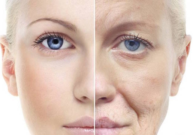 the effects of photoaging