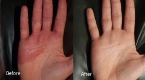 LED-Phototherapy-eczema-hands-before-and-after