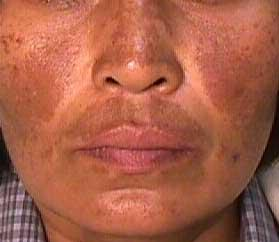 Melasma on a patient face