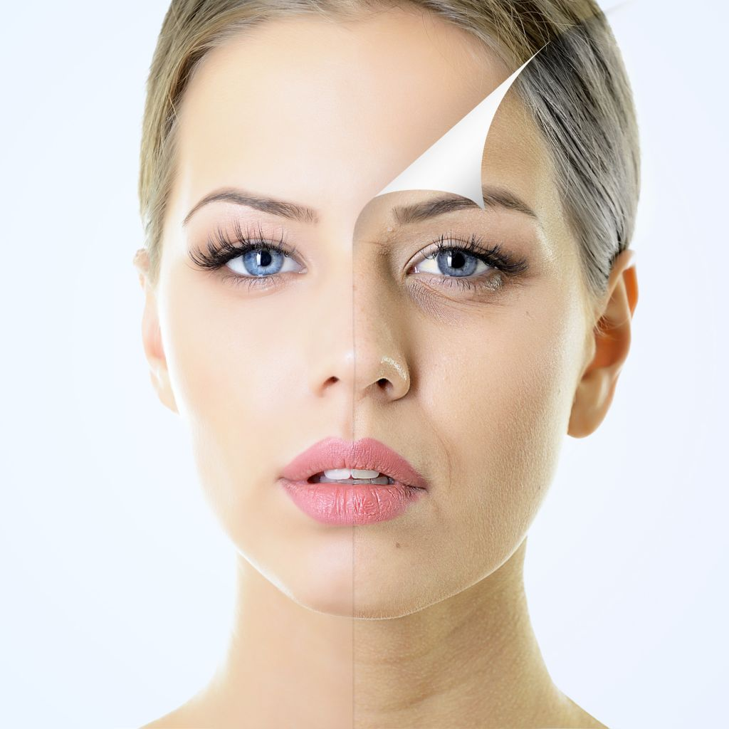 chemical peels treatments
