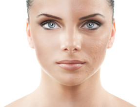 glycolic acid peel treatments